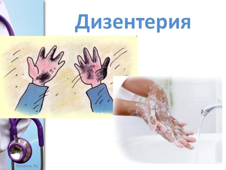 Дизентерия: причины, симптомы, лечение